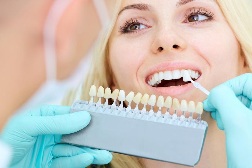 Przebarwienia zębów i czynniki na nie wpływające