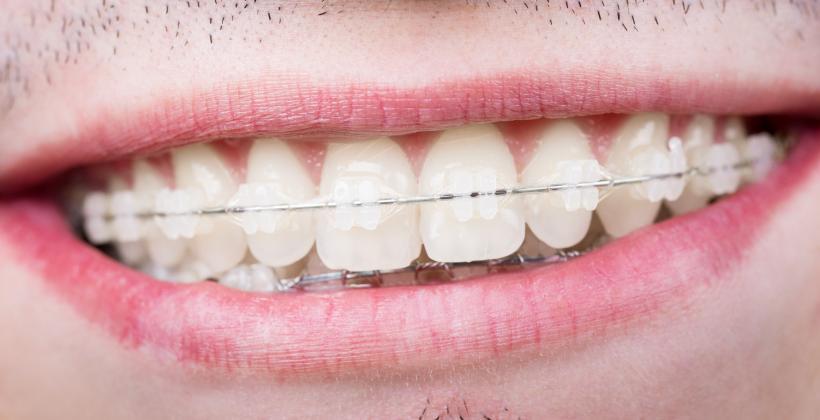 aparat-ortodontyczny-krysztaloy-szafirowy-medical-dent-uk