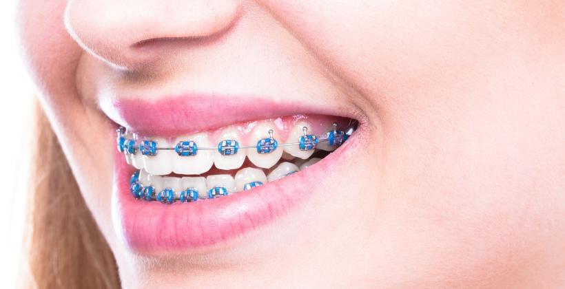 aparat-ortodontyczny-metalowy