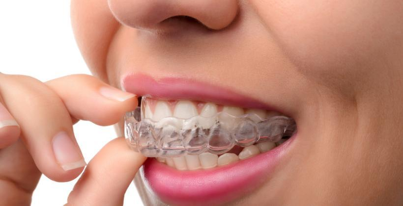 aparat-ortodontyczny-ruchomy-Essix-retainer.