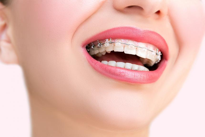 Leczenie ortodontyczne od A do Z