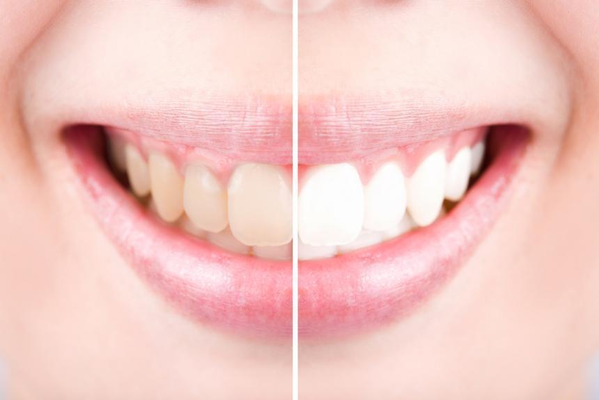 Wybielanie Zębów od A do Z