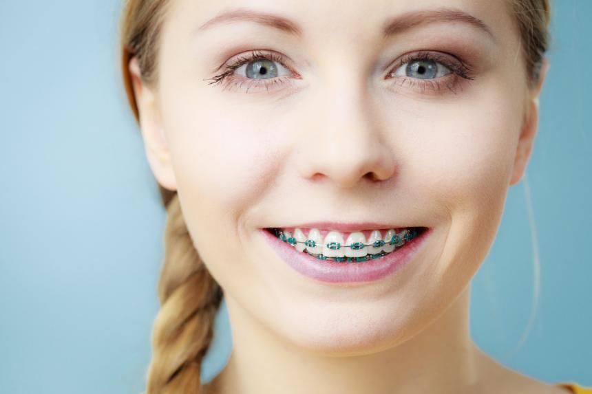 Leczenie ortodontyczne w sześć miesięcy. Prawda i mity.