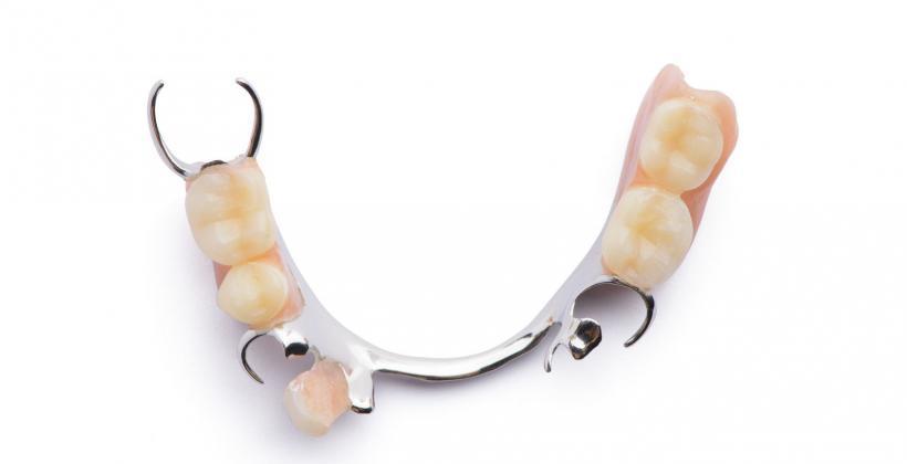 protezy szkieletowe dentysta