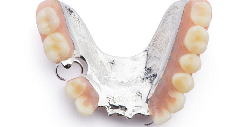 protezy szkieletowe dentysta uk