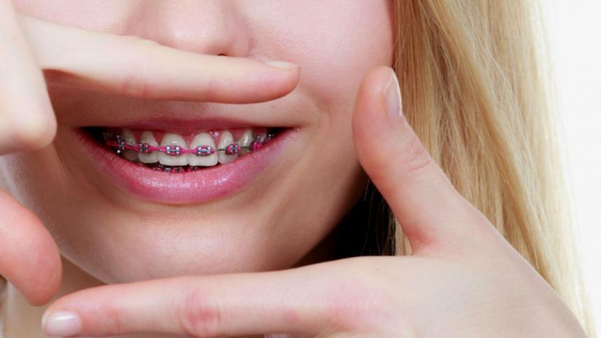 Rodzaje aparatów ortodontycznych w UK – co wybrać?