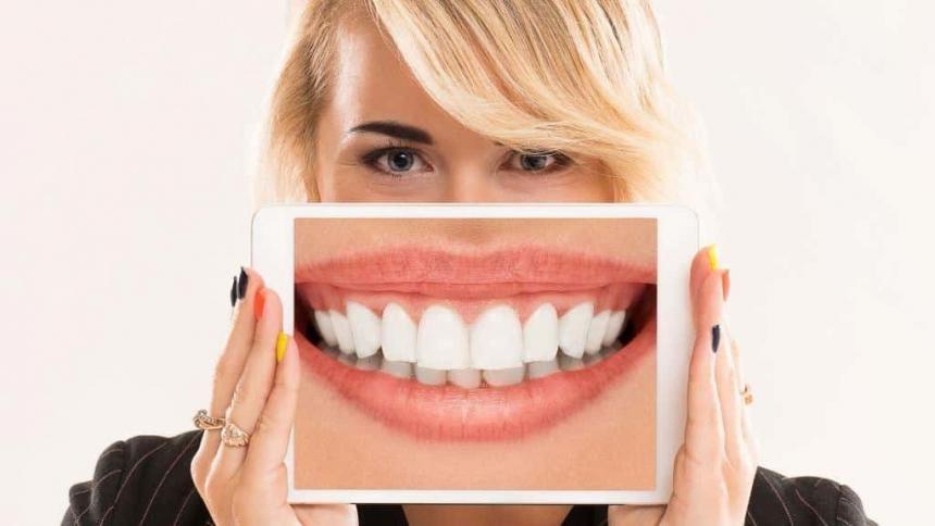 Licówki na zęby w UK. Wszystko, co musisz wiedzieć