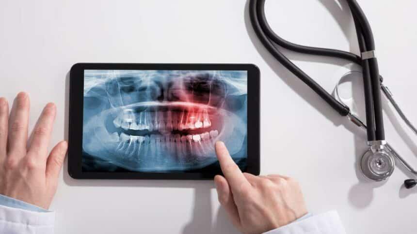 Leki i choroby, które psują zęby
